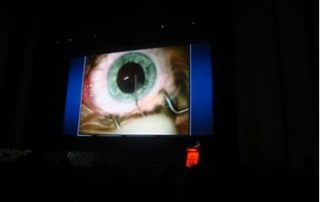 European Society of Cataract & Refractive Surgeons Mohammed Muhtaseb iLase Wales